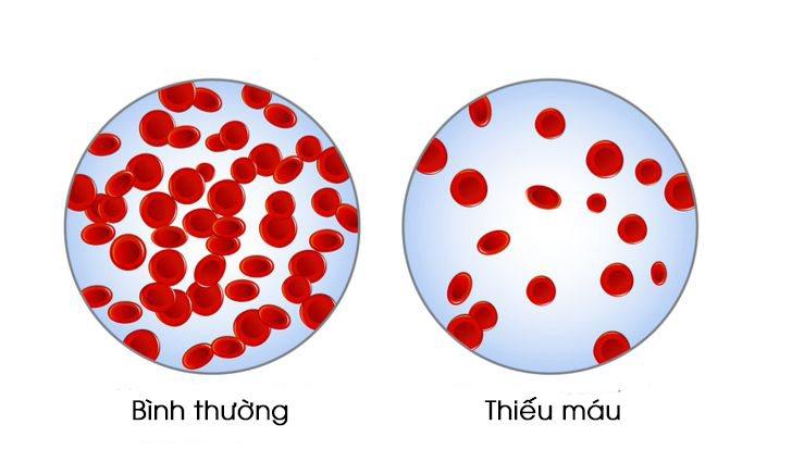 Thiếu máu: Hiểu rõ nguyên nhân, dấu hiệu, cách phòng và trị hiệu quả